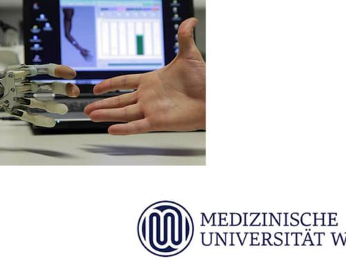 Bionische Rekonstruktion: Muskeln können nach Hand-Amputation durch Nerventransfers umfunktioniert werden